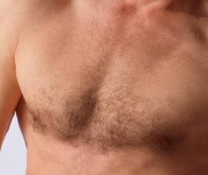 重庆欧亚毛发种植医院胸毛种植怎么做 多久能看到效果