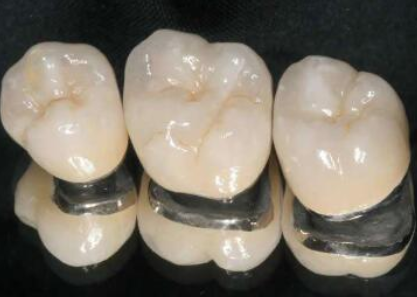 北京中诺口腔医院做烤瓷牙齿多少钱 烤瓷牙的种类
