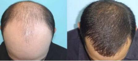 上海江城医院毛发移植科做头发加密多少钱 效果好不好