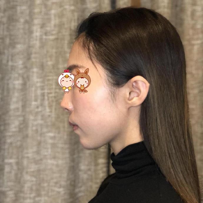 上海华美整形医院下颌角整形案例 彻底摆脱了大脸盘子