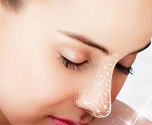 日照莒县人民医院整形科假体隆鼻术的优点 天鹅般曲线