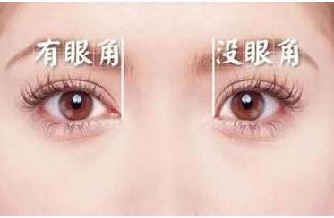 上海美联臣整形医院开眼角价格贵吗 要多久恢复
