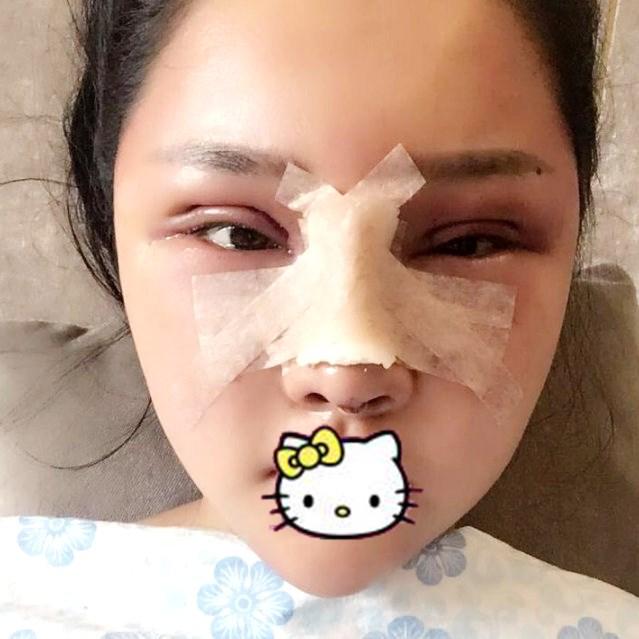 绍兴华美整形医院眼综合+鼻综合整形案例 高级脸立显