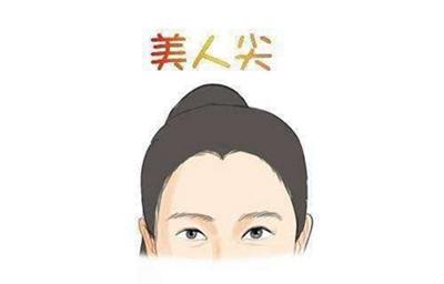 北京发盛园国际植发医院种美人尖需要多少钱 能立即见效吗