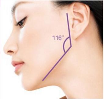 下颌角整形去哪个医院好 上海华美整形医院怎么样