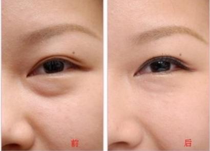 武汉亚太整形医院做激光祛眼袋多少钱 会反弹吗
