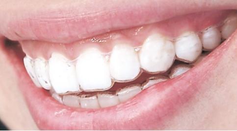 24岁还能矫正牙齿吗 北京欢乐口腔门诊部做牙齿矫正的价格