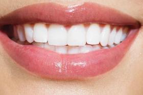 南昌瑞尔口腔门诊部烤瓷牙性价比高 修复牙齿的好方式