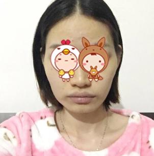 杭州同欣整形医院下颌角磨骨案例分享 脸瞬间小了一大圈
