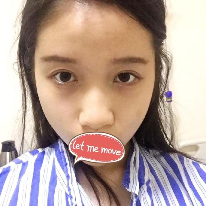 广州天姿整形医院假体隆鼻案例 挺翘的美鼻 侧颜真是没腻了