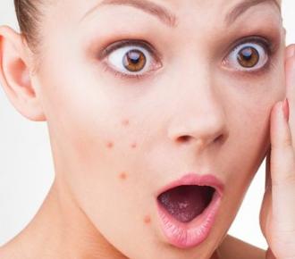 南京维多利亚整形医院激光祛痘效果是永久吗 重现光滑美肌