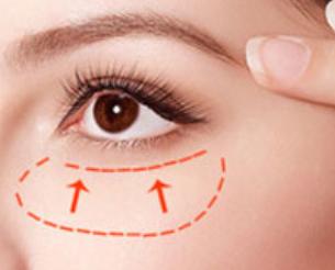 什么祛眼袋效果好 成都驻颜整形医院激光去眼袋价格贵吗