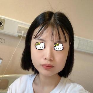 北京惠美整形医院下颌角磨骨案例 再也不用被人嘲笑了