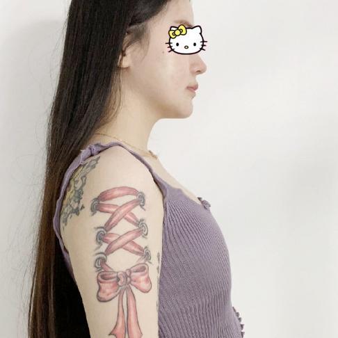 在上海韩镜医疗美容医院做了隆胸手术 让我身材前凸后翘