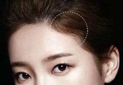 重庆骑士植发医院种植发际线 乌黑有型 自然浓密