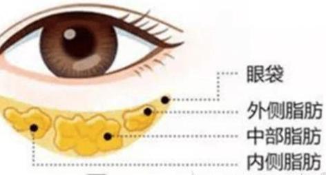 芜湖美人鱼整形医院做眼袋抽脂手术效果怎样 需要多少钱呢