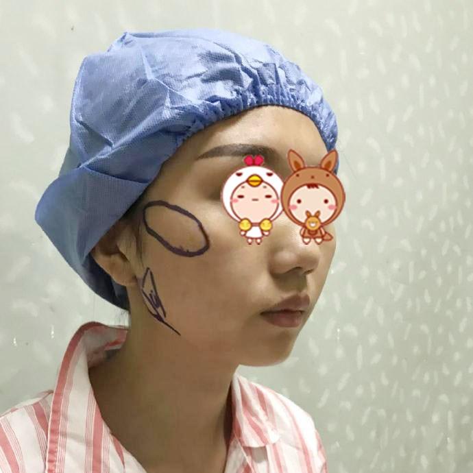 北京壹加壹整形医院磨骨瘦脸案例 终于拥有了梦想的小脸
