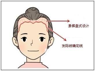 重庆迪邦皮肤病医院植发科种植发际线要多少钱