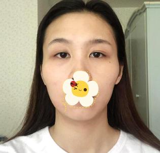 上海美莱整形医院磨骨手术前后对比图 异性缘飙升