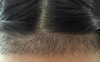 长沙雍禾植发医院种植发际线价格高吗 会留疤痕吗