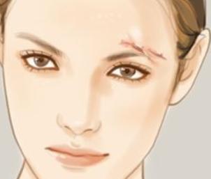 广东揭阳普宁安琪整形医院激光祛疤的方法 要做几次才见效