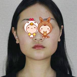 上海首尔丽格整形医院下颌角切除案例 让我彻底告别过去
