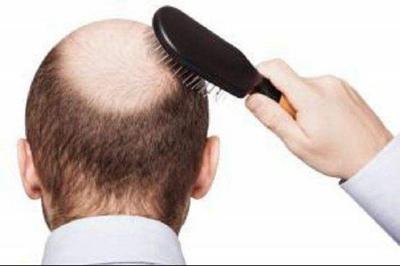 """秃顶会遗传吗 深圳仁瑞植发好吗 帮你摆脱""""青年秃"""""""