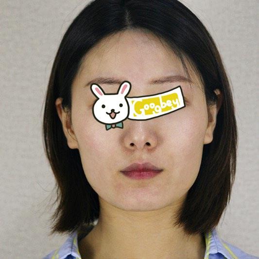"""广州广美整形医院下颌角磨骨案例 女人就是要美的""""不可理喻"""""""