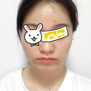 福建宁德东侨东韩整形医院下颌角磨骨后脸型很自然 蜕变成功
