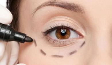 如何祛黑眼圈和眼袋 成都驻颜整形激光去眼袋黑眼圈优势