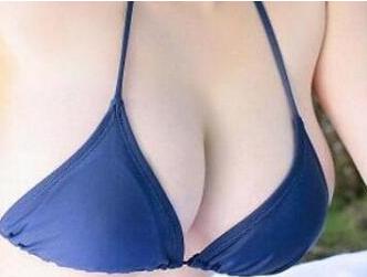 郑州徐锐峰整形医院乳房下垂矫正价目表 挺起来更美