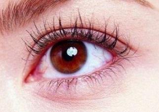 广州曙光【眼部整形】切开双眼皮/外切去眼袋 自然灵动