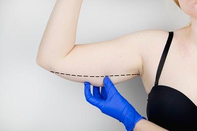 手臂吸脂推荐医师 北京艾玛整形医院脂肪中心主任-韦元强