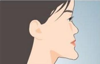 25岁能做地包天矫正吗 重庆美奥口腔医院矫正地包天多少钱