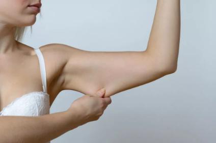 武汉米兰整形医院吸脂手术瘦手臂效果好吗 手臂吸脂价格