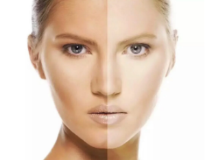 南京福华整形医院做彩光嫩肤要多少钱 对皮肤有危害吗