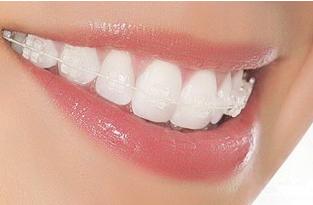 东莞牙科医院排名 地包天矫正时期