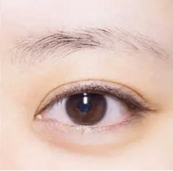 天生没有眉毛怎么办 广州雅度植发医院眉毛种植价格贵吗