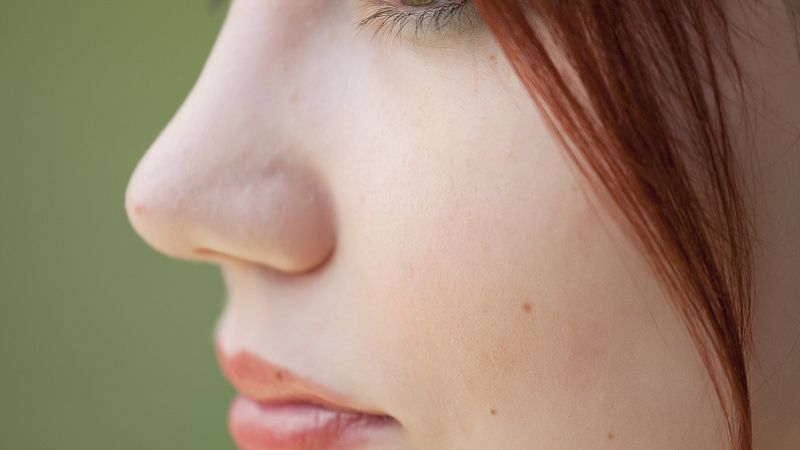 福州维多利亚整形医院做大鼻头整形效果好吗 鼻头缩小得多少钱