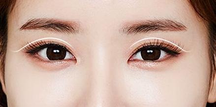 深圳伊婉【埋线双眼皮】[8D]提拉肌肤 瞬变明星脸