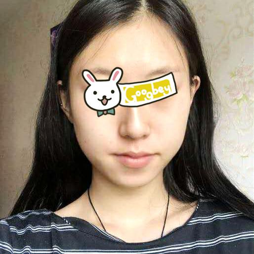 北京华韩整形医院下颌角磨骨垫下巴案例 鳄鱼脸少女蜕变V脸的逆袭日记