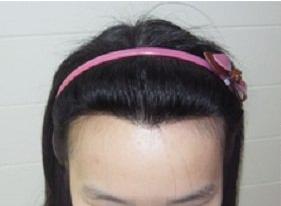 重庆真伊医院植发科专家排名 美人尖种植做颜值美女