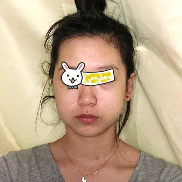 宜昌伊莱美整形医院做下颌角整形 让我的脸型变的美美的