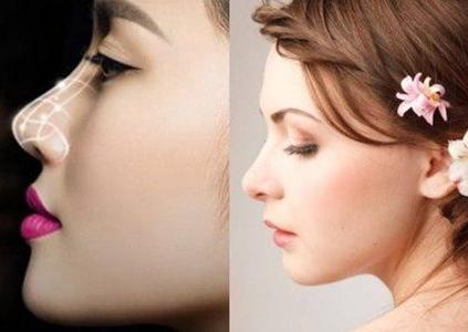 上海名媛【鼻部整形】假体隆鼻/鼻翼缩小/鼻修复 专注美鼻