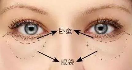 杭州维多利亚【眼部整形】内切去眼袋 美眼无痕 效果长久