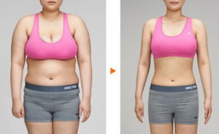 成都高新美极整形医院做全身抽脂减肥多少钱 吸脂有副作用吗