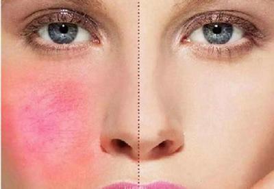 【宜兴市中医院整形科】治疗红血丝的正确姿势 光子嫩肤了解一下