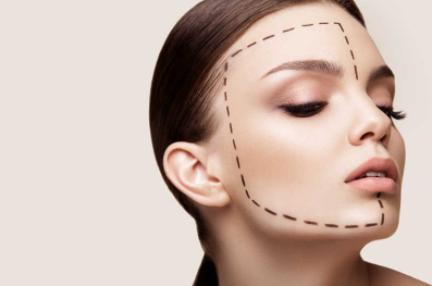 脸大怎么样才能瘦 上海星璨国际整形医院做面部吸脂会反弹吗