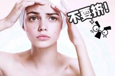 上海一美整形医院激光祛痘多少钱 会复发吗