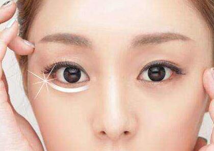 济南爱容整形医院做眼睛激光手术需要多少钱